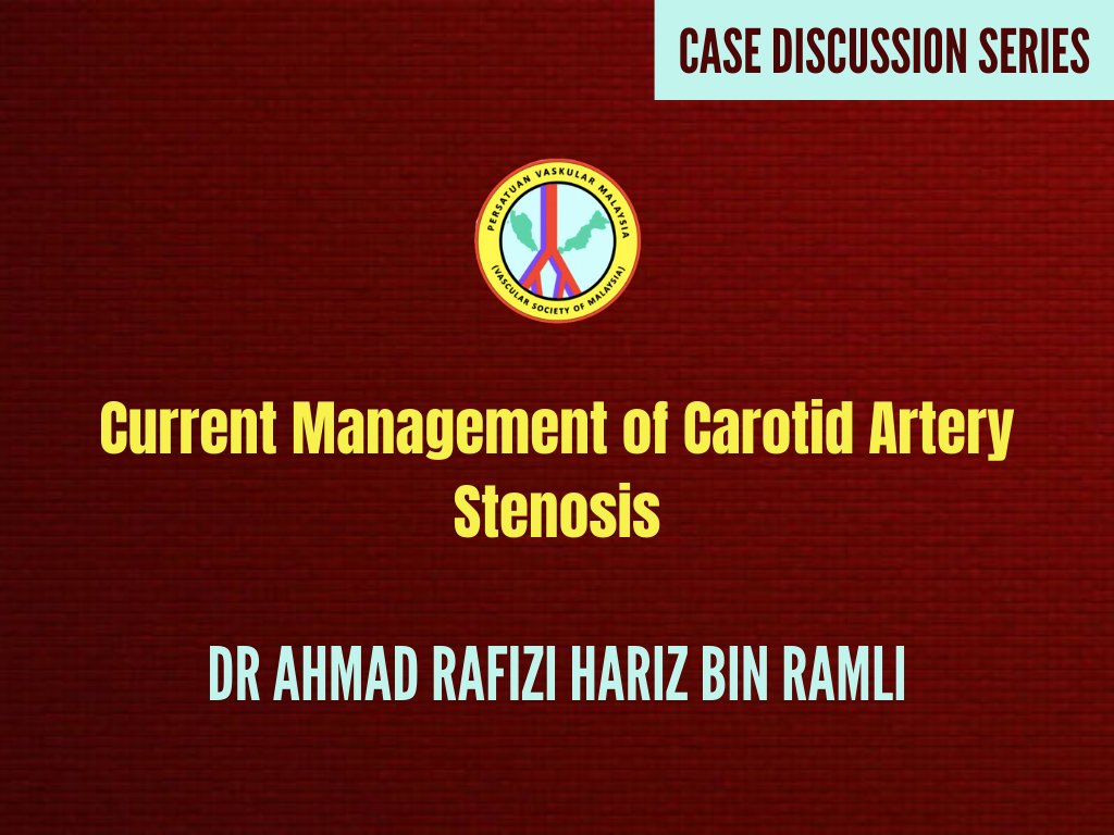 Current Management of Carotid Artery Stenosis